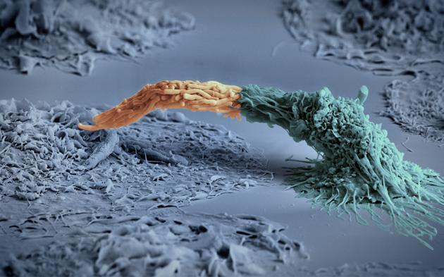 Макрофаг (дясно, син) поглъща туберкулозна бактерия (ляво, оранжева). Credit: Daniela Maria Cirillo