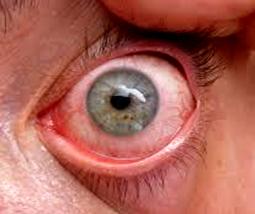 Keratoconjunctivitis sicca - Синдром на сухото око (dry eye syndrome, DES)
