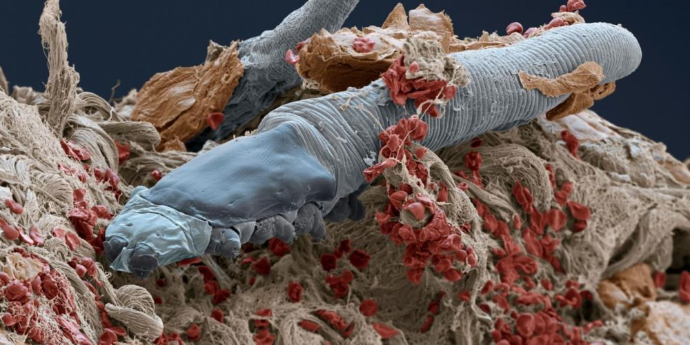 Demodex folliculorum под сканиращ електронен микроскоп (Credit: Power and Syred/SPL)