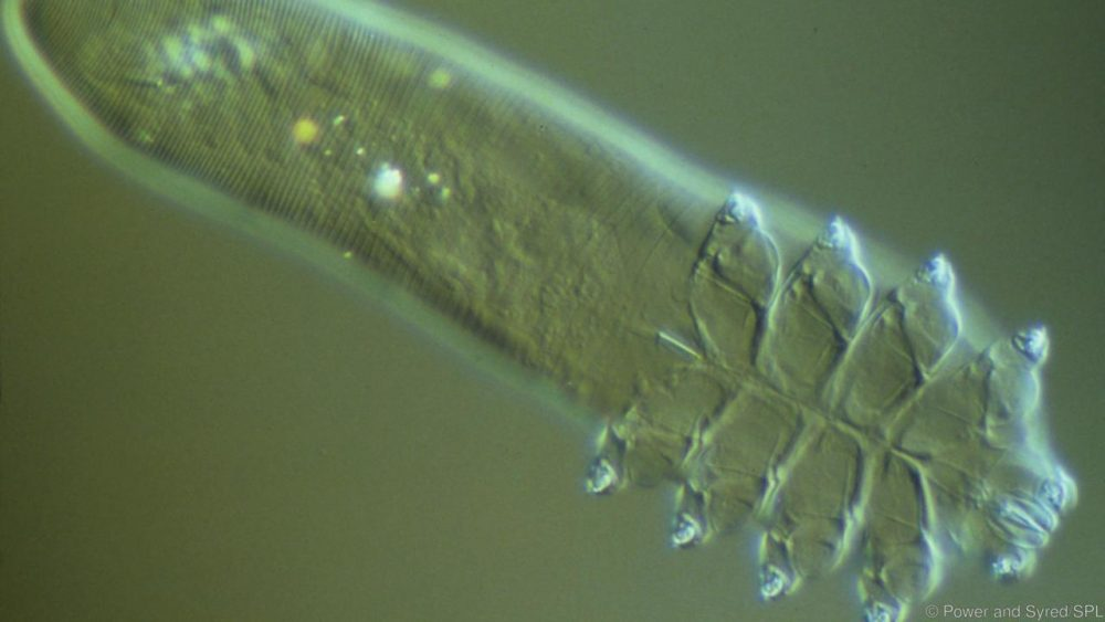Demodex folliculorum под светлинен микроскоп (Credit: Power and Syred/SPL)