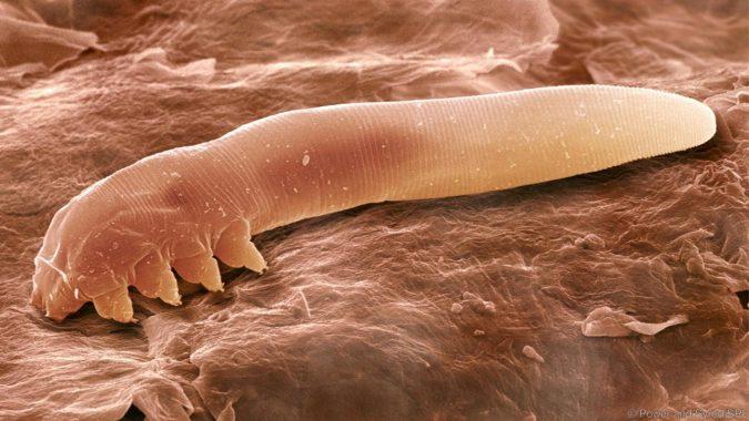 Сканираща електронна микрография на Demodex folliculorum (Credit: Eye of Science/SPL)