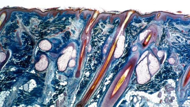Човешката кожа, с мастните жлези, прикрепени към космените фоликули (Credit: Sheila Terry/SPL)
