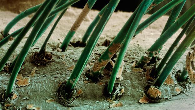 Мигли с D. folliculorum, които дебнат в фоликулите. (Credit: Steve Gschmeissner/SPL)