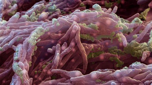 Бактериите Mycobacterium tuberculosis са станали твърде устойчиви на медикаменти за туберкулоза. Credit: Eye of Science/Science Source