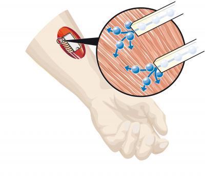Йонно базиран електронен чип за контрол на мускули