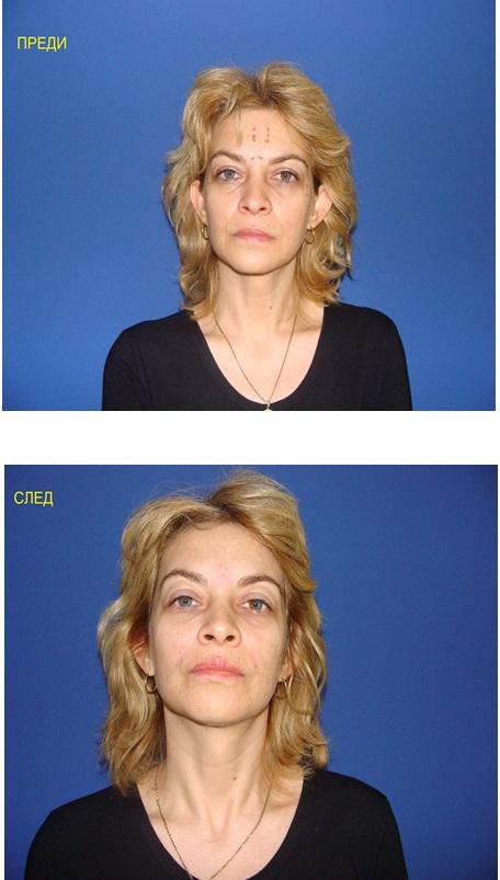Silhouette soft. Нов метод за лицево подмладяване