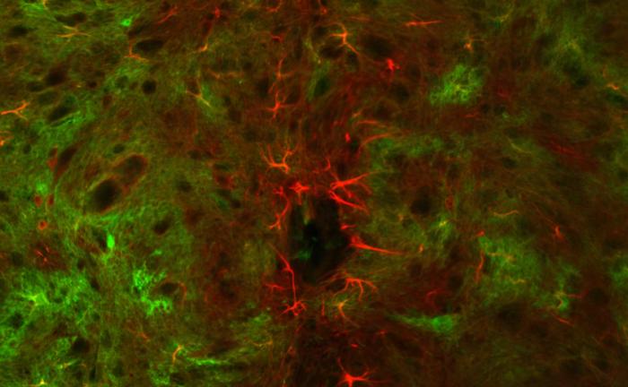Невидимият живот на нервните клетки