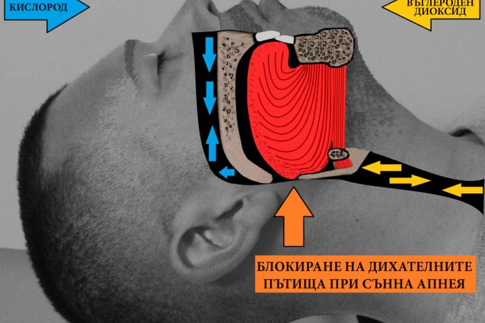 Връзката между сънната апнея и зъболекаря ви