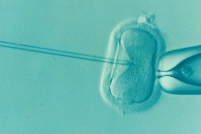 """Нов метод за """"подмладяване"""" на яйчниците"""