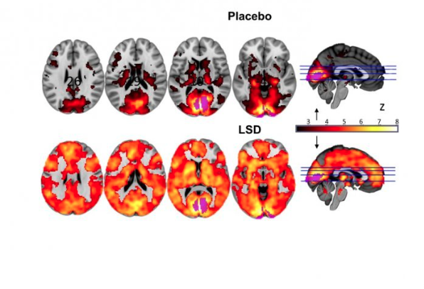 Ново проучване върху LSD ни осигурява изображения на мозъка под негово влияние