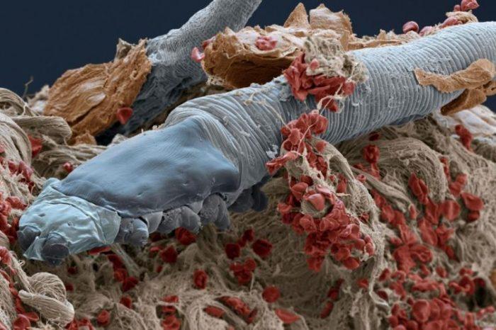 Тези микроскопични акари живеят по лицето ви