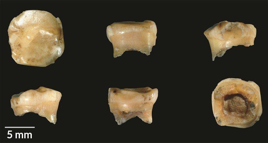 Износеният зъб на 10-12-годишно момиче, открит е в пещера в Сибир, датира от преди поне 100 000 години, докладват изследователи. Това превръща този фосил, представен под различни ъгли, в най-древния сред родствено на неандерталците население, наречено денисови хора. Credit: V. SLON ET AL/SCIENCE ADVANCES 2017