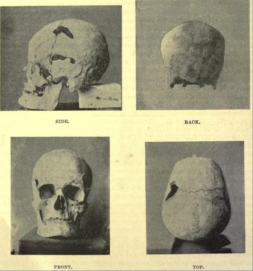Вероятно това е черепът на древния египетски фараон Sanakht от Третата династия. Credit: Royal Anthropological Institute of Great Britain and Ireland