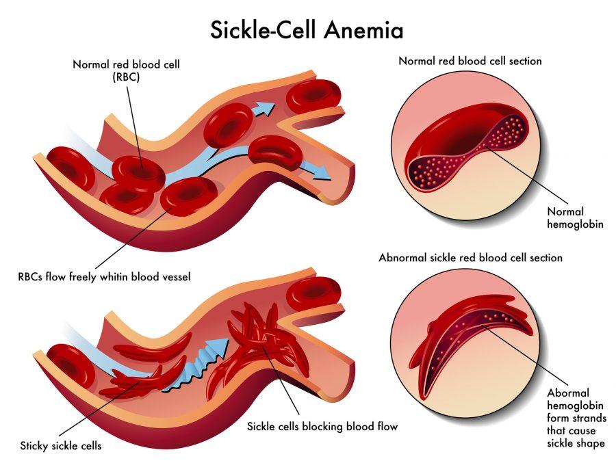 Хемоглобин С е с пръчковидна форма и поради големите си размери, принуждава и червените кръвни клетки да заемат подобна форма, за да могат да го приютят. Когато всички кръвни клетки заемат тази форма, част от тях могат да запушат кръвоносен съд, да спрат притока на кръв в него и да попречат на кислорода да достигне до жизненоважни органи.