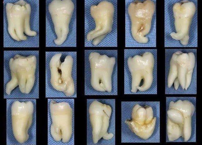 Видове зъби и съзъбия при човека