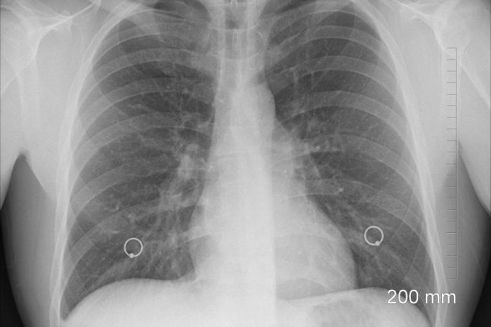 Учените разработват нова стратегия за ваксина срещу туберкулоза