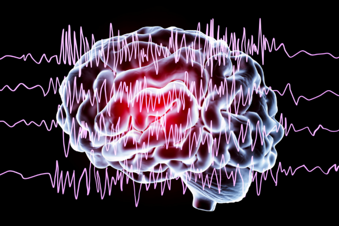 Устройство идентифицира песни по мозъчните вълни на хората