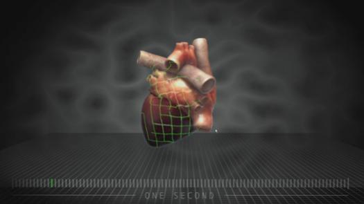 Компютърни модели позволяват на доктори да предвиждат инфаркти
