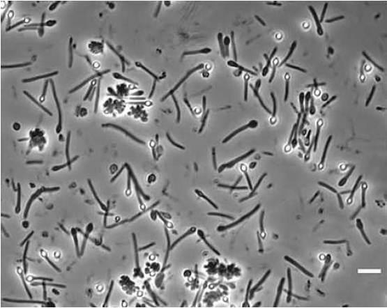 Как да направим фотосинтетична бактерия в една лесна стъпка
