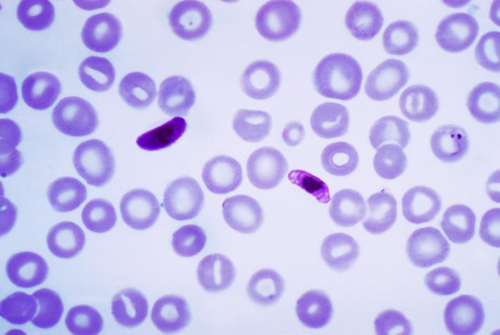 Шперца на маларията