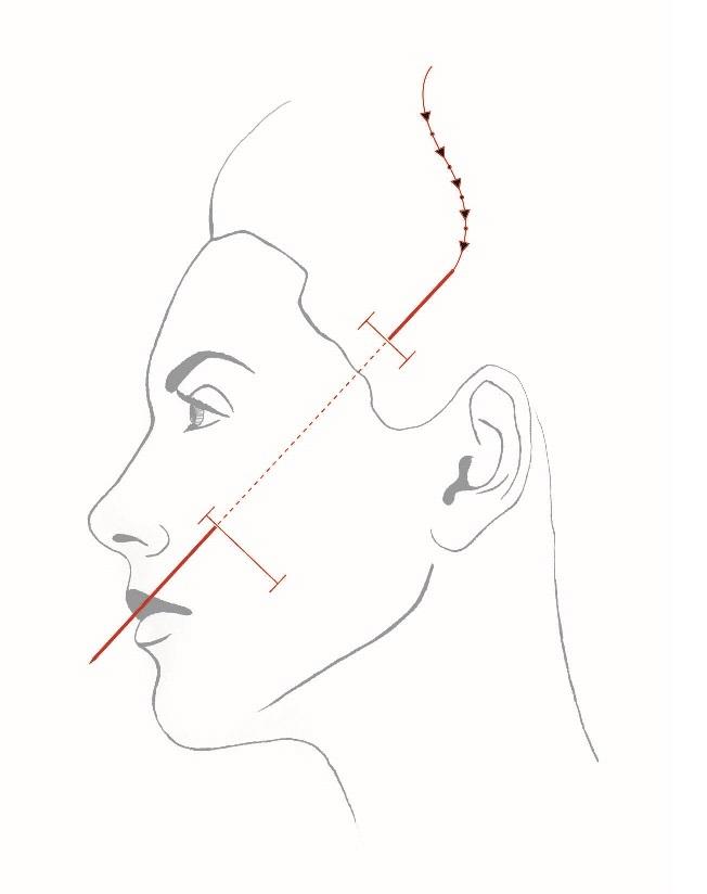 Силуетлифт – минимално инвазивна методика за подържане и подмладяване на лицето
