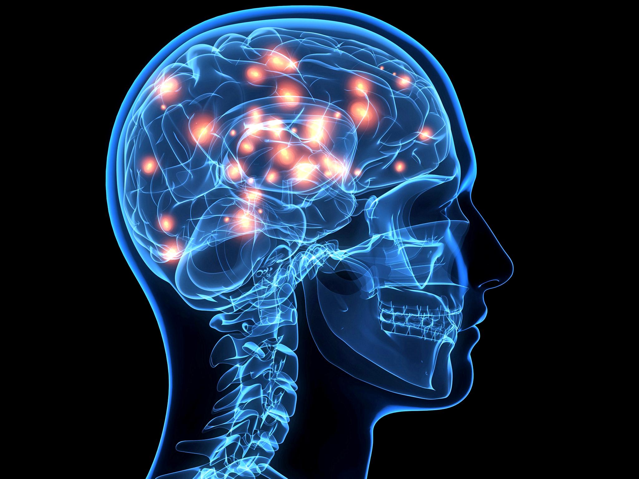 Винете шумния си мозък при пропуски и неточности