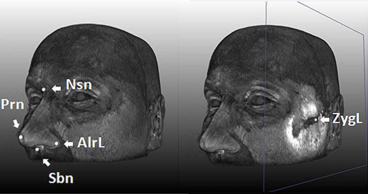 Чертите на човешкото лице зависят от 5 гена