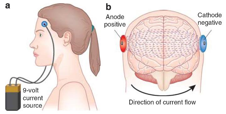 Транскраниалната стимулация може би удря левичарите от грешната страна на мозъка